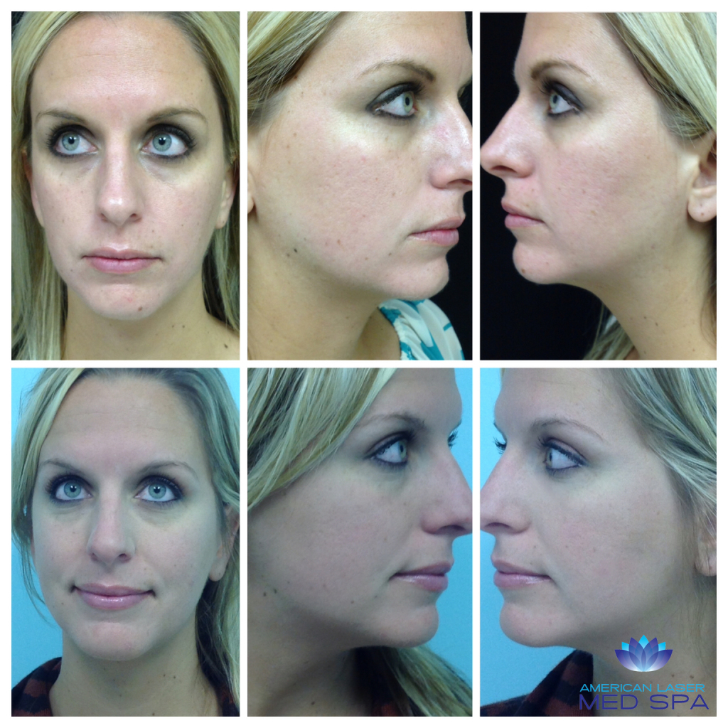 microneedling-before-and-after
