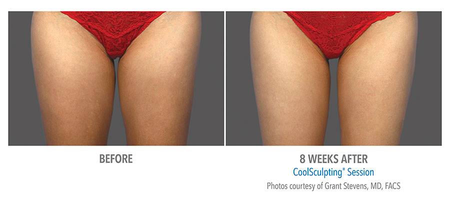 Coolsculpting-Thigh-Before-After-1