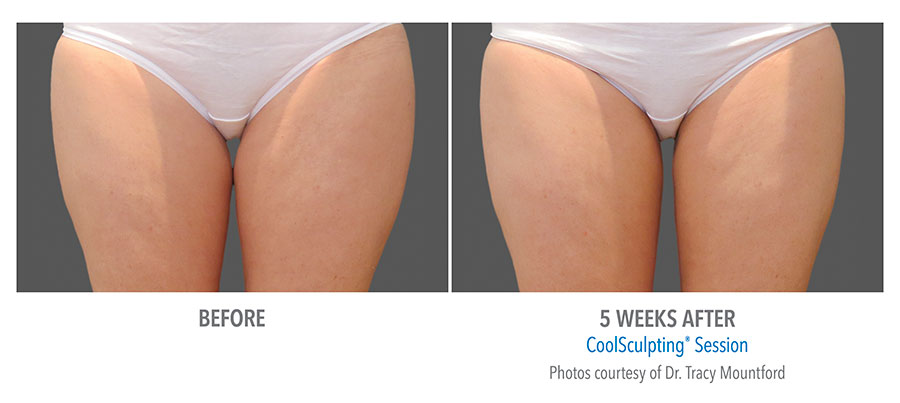 Coolsculpting-Thigh-Before-After-2