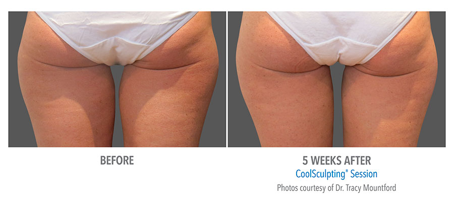 Coolsculpting-Thigh-Before-After-3