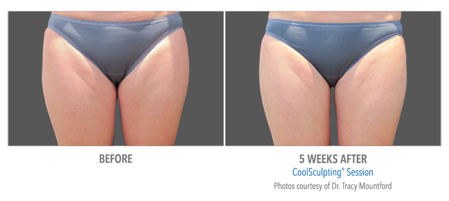 Coolsculpting-Thigh-Before-After-4