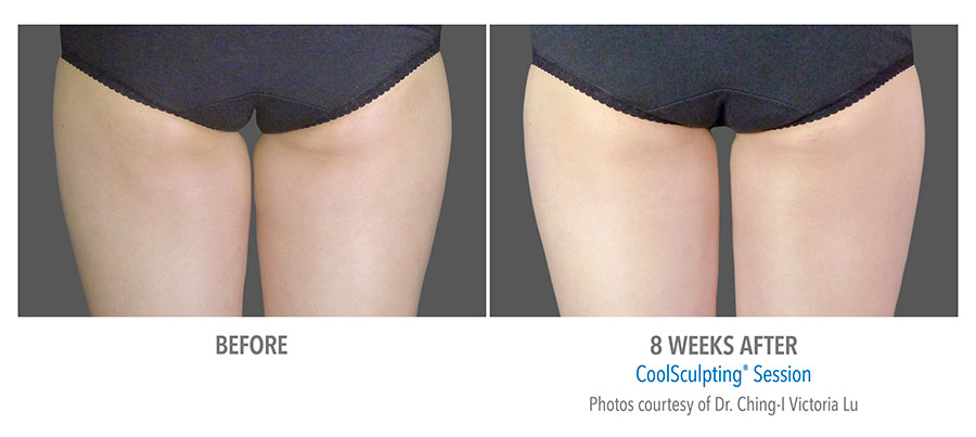 Coolsculpting-Thigh-Before-After-5