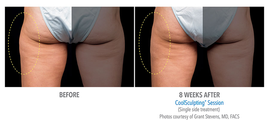 Coolsculpting-Thigh-Before-After-8