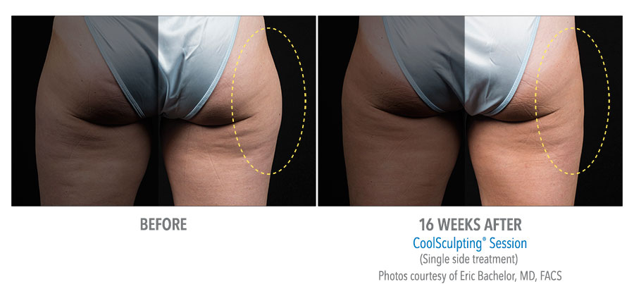 Coolsculpting-Thigh-Before-After-9